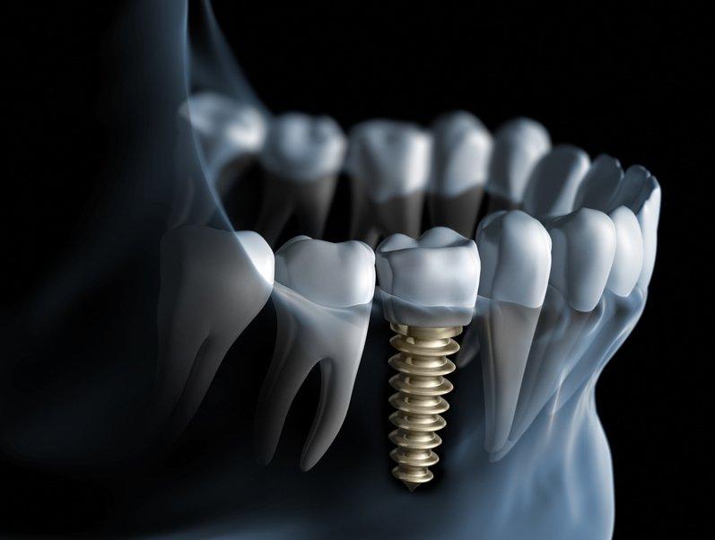 dental-implats