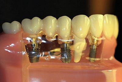 implanty-leczenie