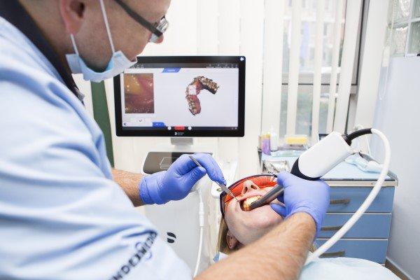 cyfrowe-leczenie-protetyczne-8720